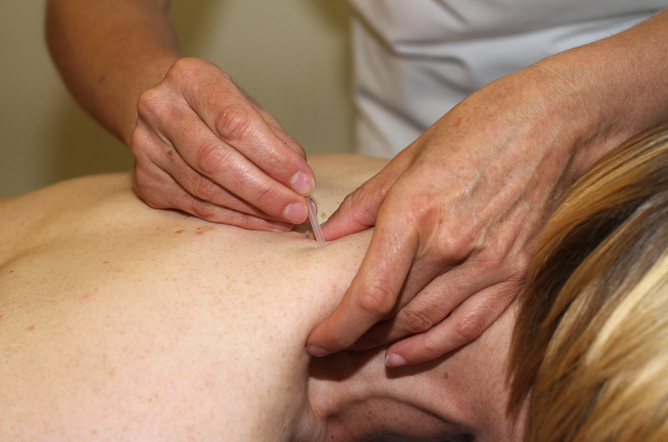 Julie Duff Acupuncture in Exeter