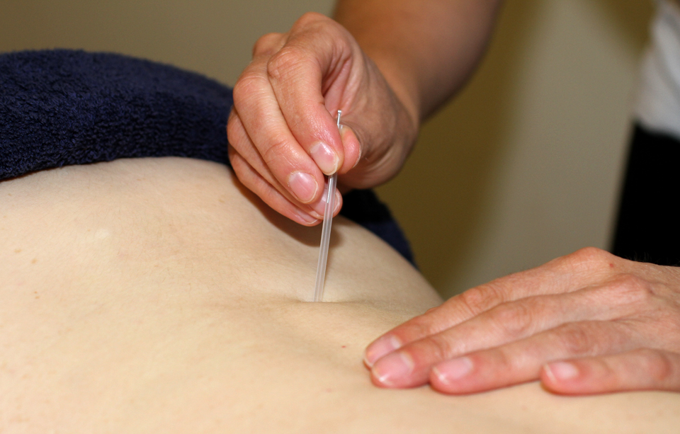 Julie Duff Medical Acupuncture in Exeter